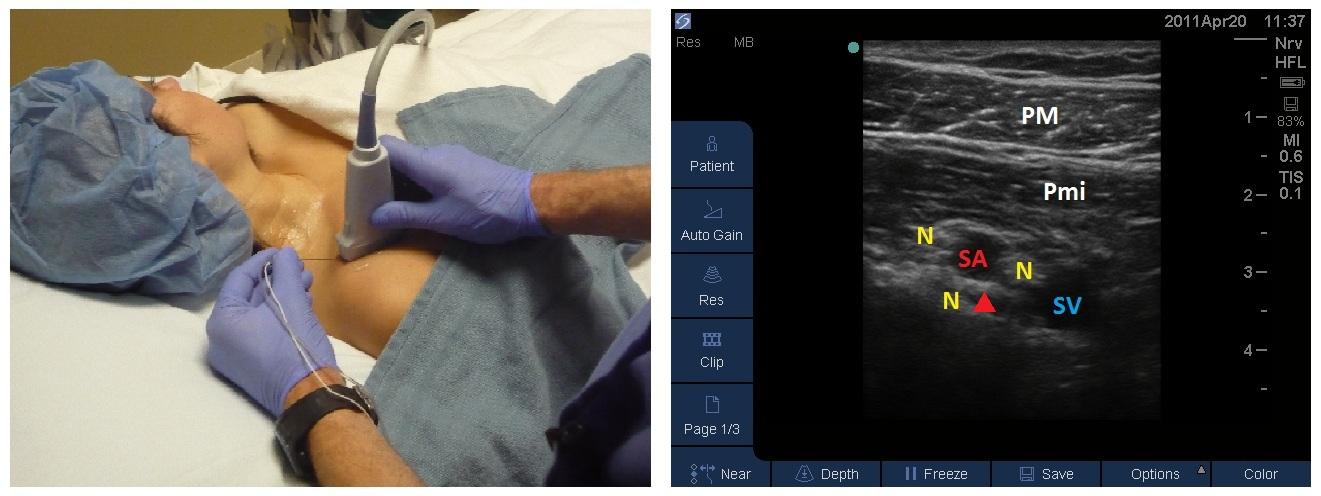 Brachial Plexus moreover Ankle furthermore Lab1 preLab also Rear Human Upper Leg furthermore 5685049. on posterior body position