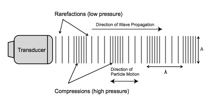 Anatomy of a sound wave.