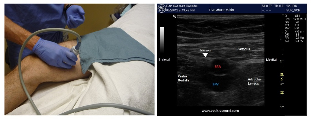 adductor landmark and US image